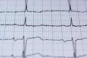 התקף לב בזמן עבודה נחשב לתאונת עבודה
